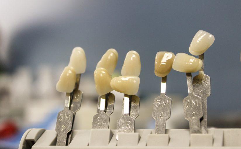 Śliczne urodziwe zęby również olśniewający prześliczny uśmiech to powód do płenego uśmiechu.